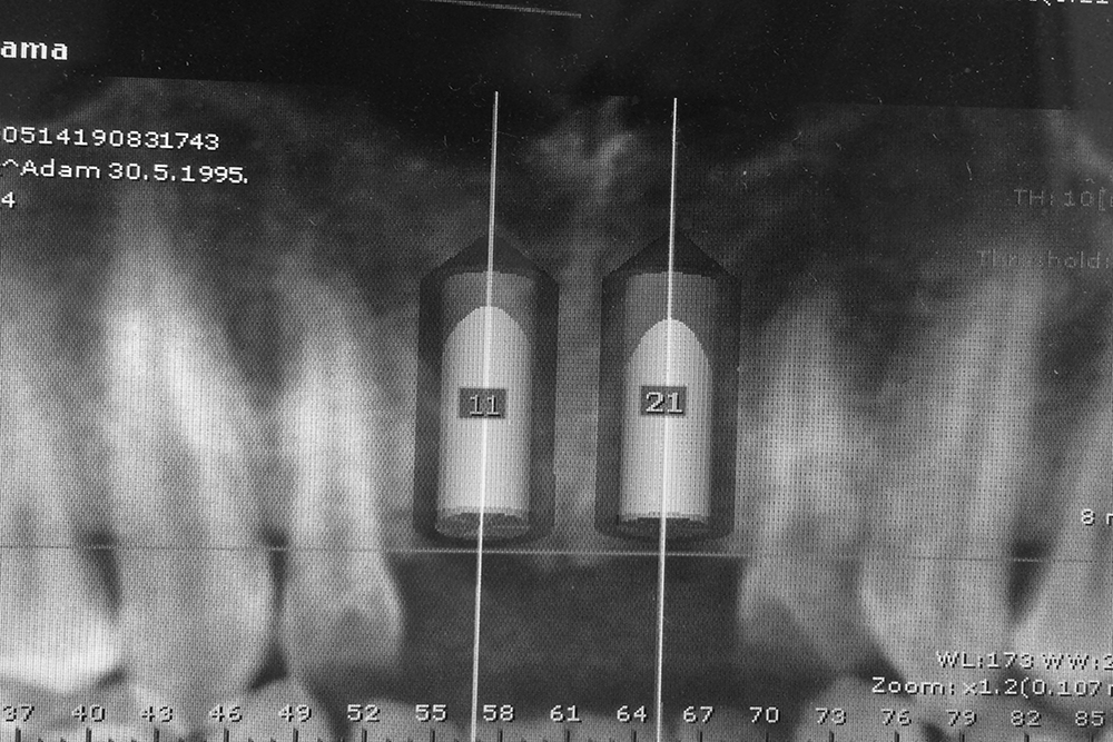 implantologija beograd centar