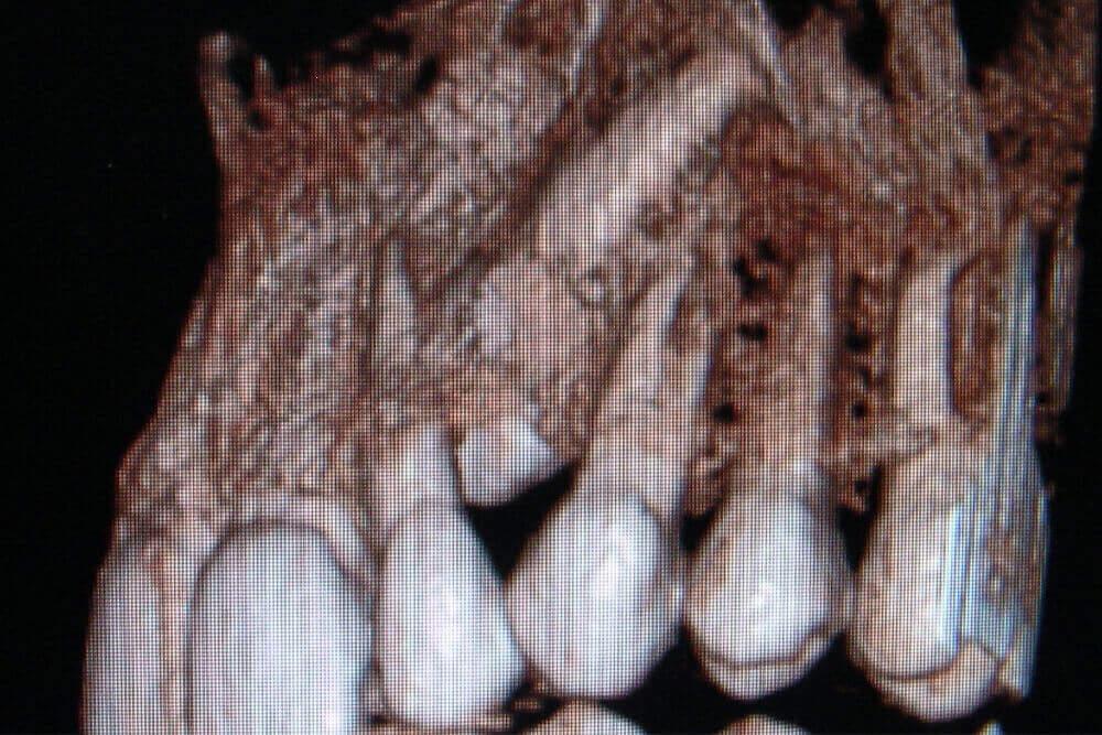 oralna hirurgija u beogradu-beograd-centar-2