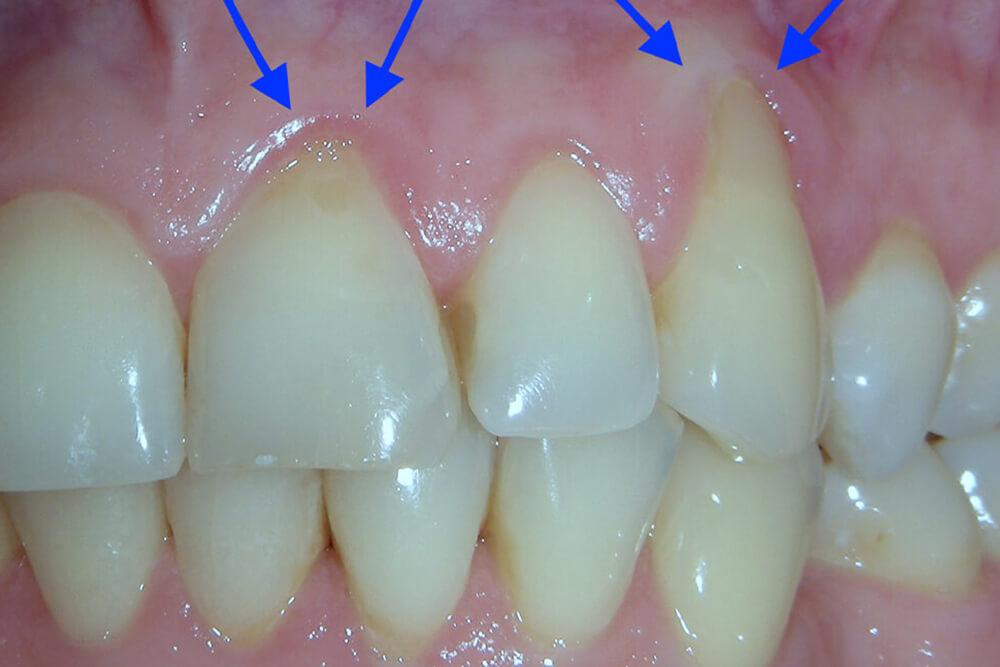 oralna hirurgija u beogradu beograd centar 3