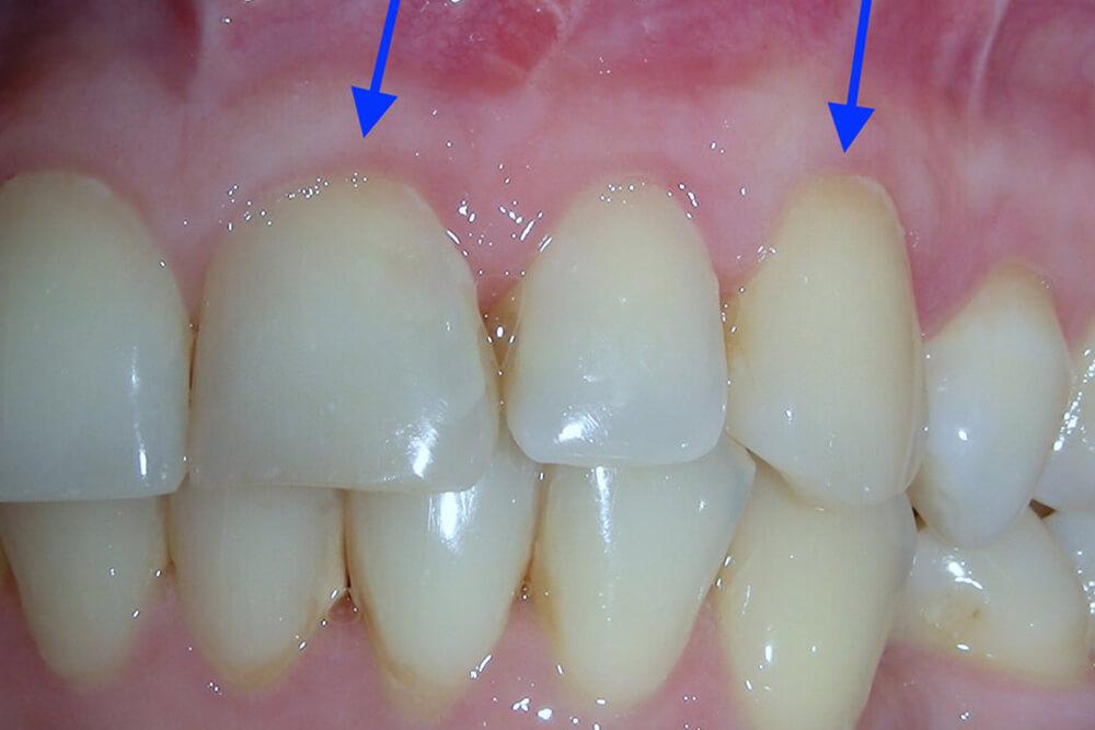 oralna hirurgija u beogradu beograd centar4