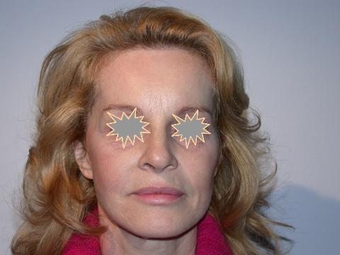 Zatezanje kože lica – fejslifting 1