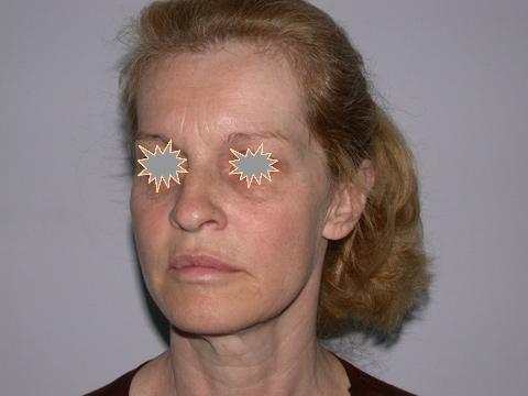 Zatezanje kože lica – fejslifting 2