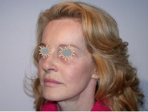 Zatezanje kože lica – fejslifting 3