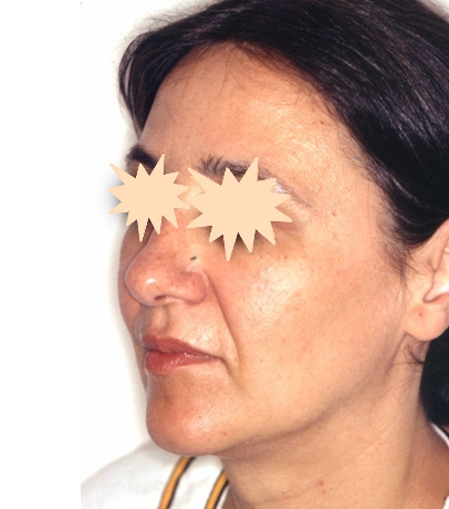 Zatezanje kože lica – fejslifting 4