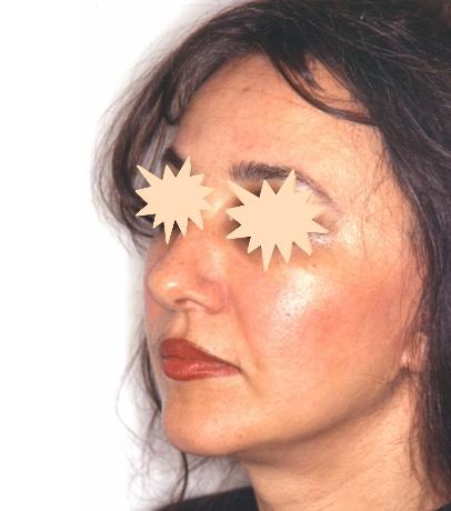 Zatezanje kože lica – fejslifting 5