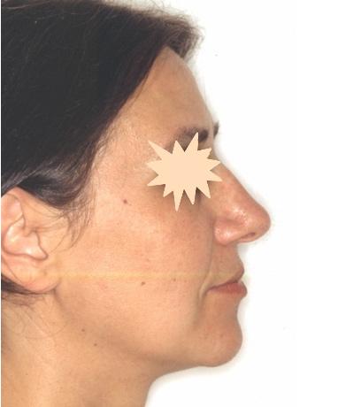 Zatezanje kože lica – fejslifting 6
