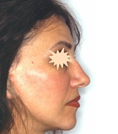 Zatezanje kože lica – fejslifting 7