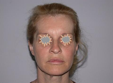 Zatezanje kože lica – fejslifting