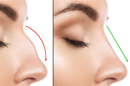 estetska hirurgija lica u beogradu beograd centar 1a