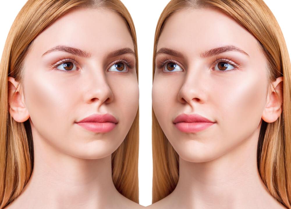 estetska hirurgija lica beograd centar 2