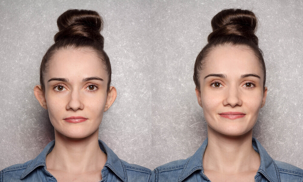 estetska hirurgija lica beograd centar 3