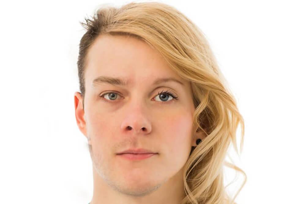 hirurška feminizacija lica beograd centar 4