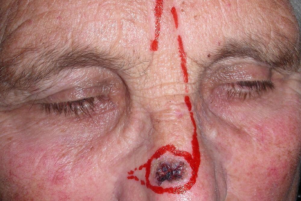 maksilofacijalna hirurgija tumori kože lica beograd centar 2