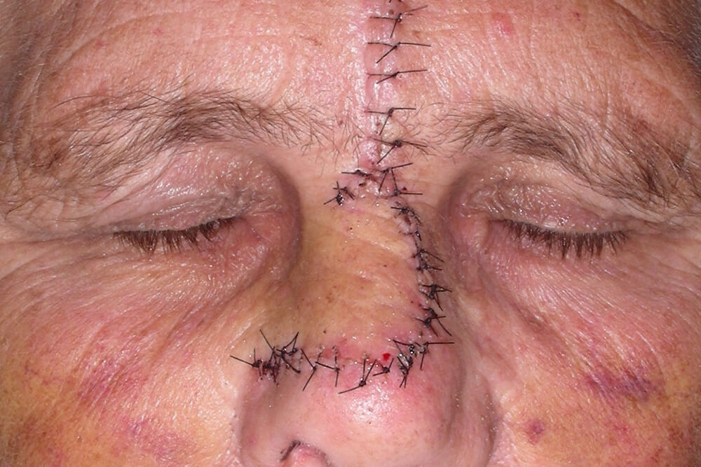 maksilofacijalna hirurgija tumori kože lica beograd centar 3