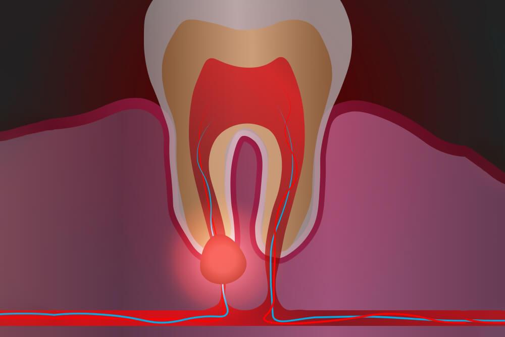 oralna hirurgija dentogene infekcije beograd centar 2