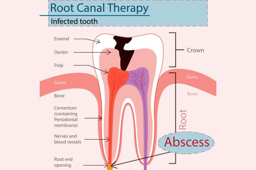 oralna hirurgija dentogene infekcije beograd centar 3