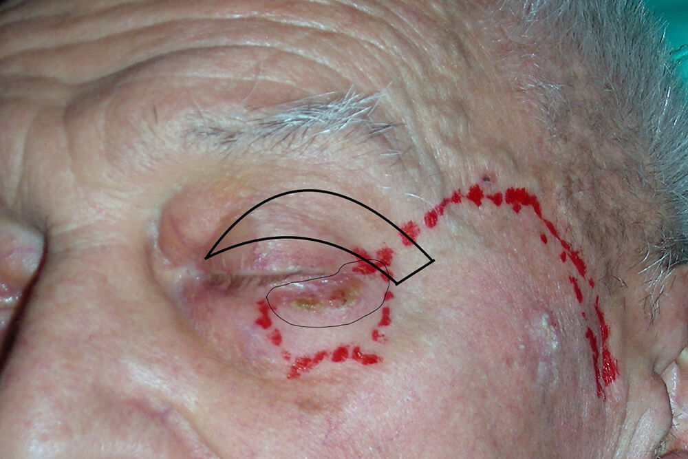 tumori glave i vrata beograd centar 1