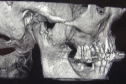 tumori glave i vrata beograd centar 3