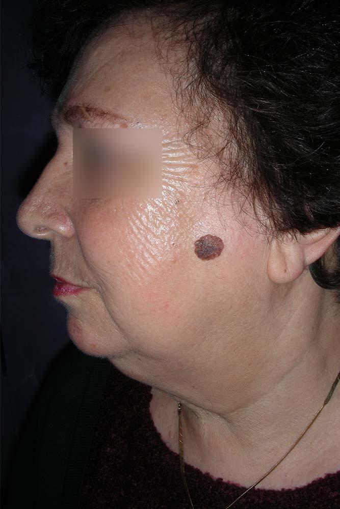tumori lica beograd centar 5