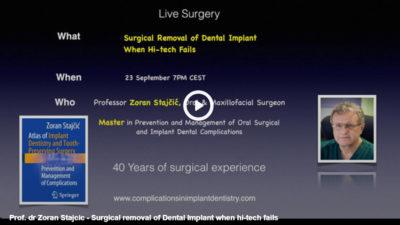 video uzivo oralna i maksilofacijalna hirurgija link