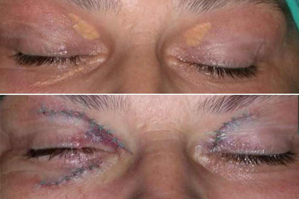 korekcija očnih kapaka beograd centar 2
