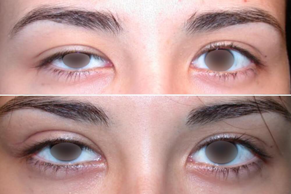 korekcija očnih kapaka beograd centar 3