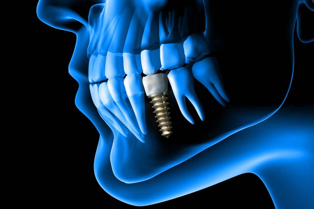 ugradnja zubnih implanata beograd centar 1