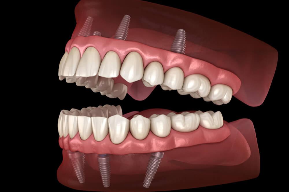 ugradnja zubnih implanata beograd centar 3