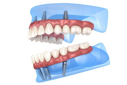 zubna proteza na implantima beograd centar 1
