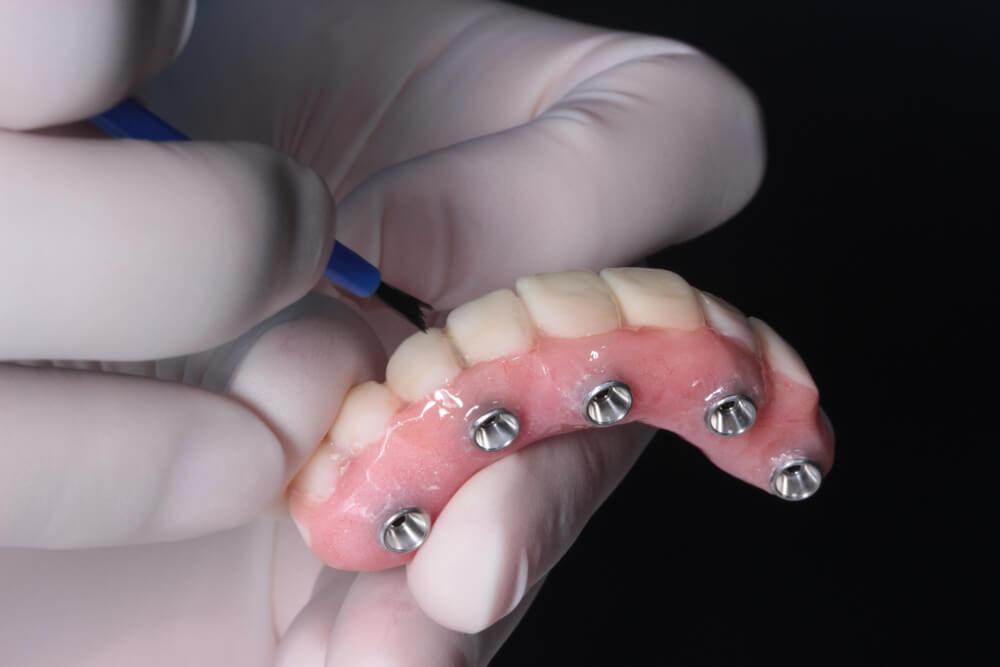 zubna proteza na implantima beograd centar 3
