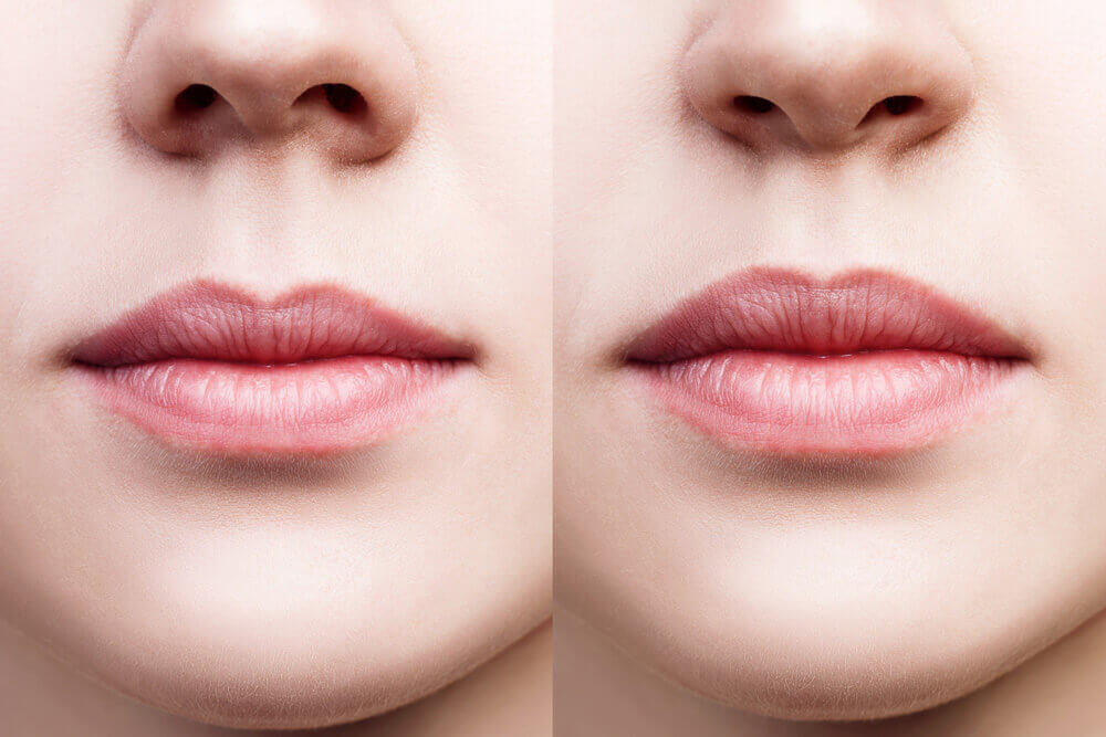 hirurško povećanje usana beograd centar 1
