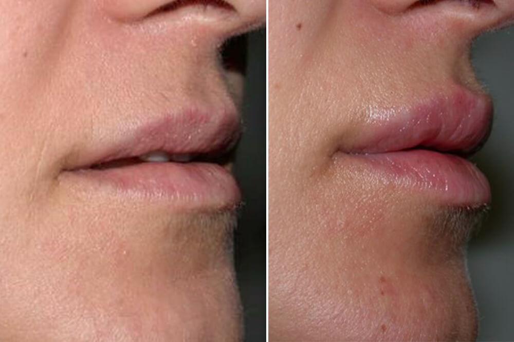 hirurško povećanje usana beograd centar 3