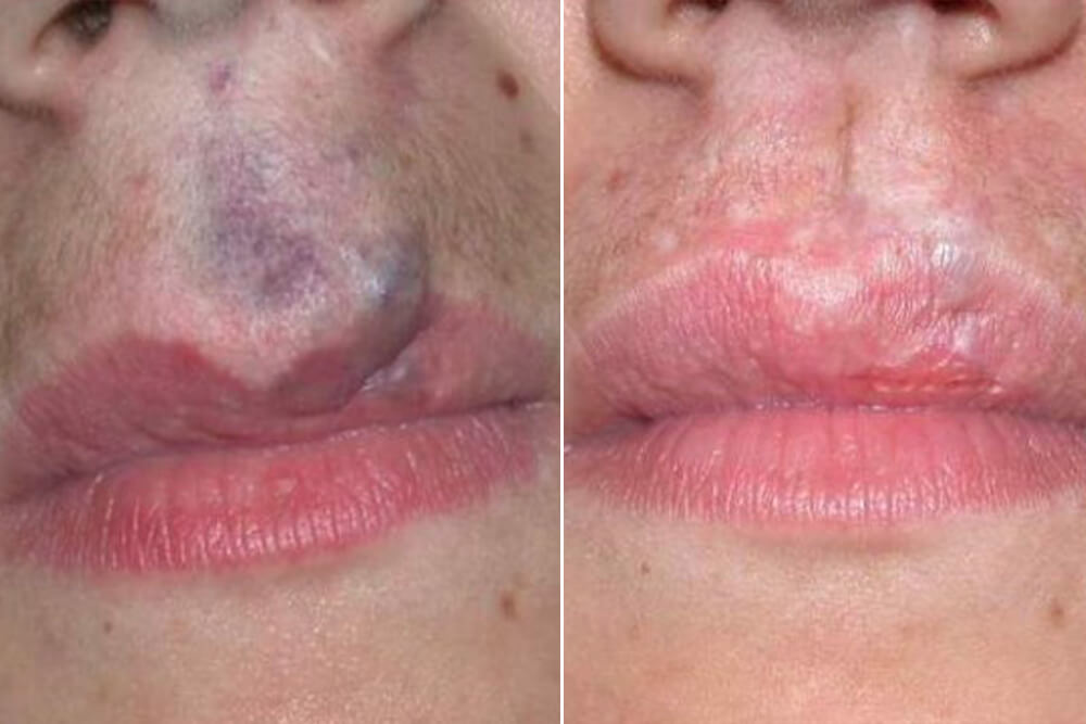 hirurško povećanje usana beograd centar 4