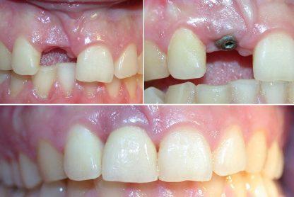 kako se ugrađuju zubni implanti beograd centar 3