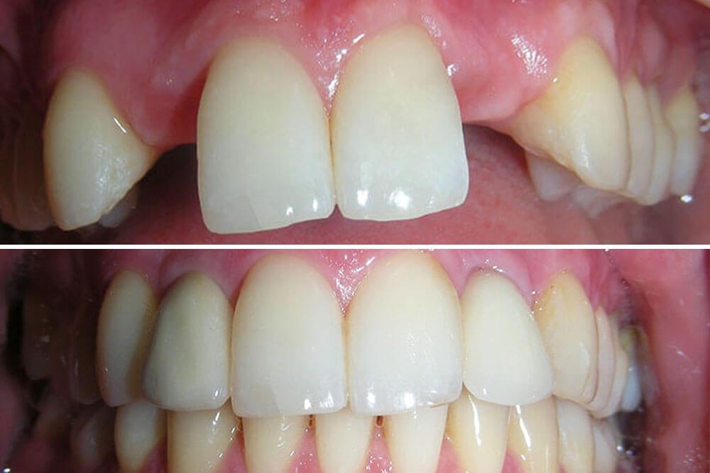 kako se ugrađuju zubni implanti beograd centar 4
