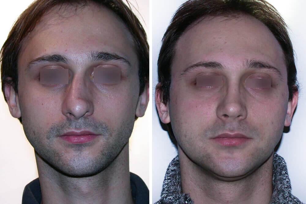operacija nosa beograd centar 1