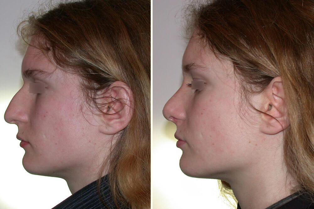 operacija nosa beograd centar 3