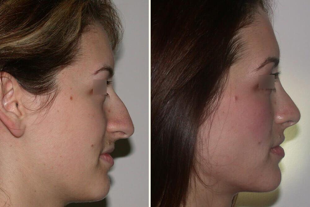 operacija nosa beograd centar 4