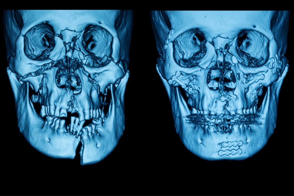 maksilofacijalni hirurg beograd centar 2