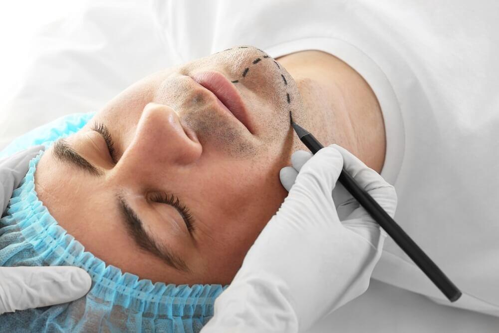 plastična hirurgija beograd centar 2