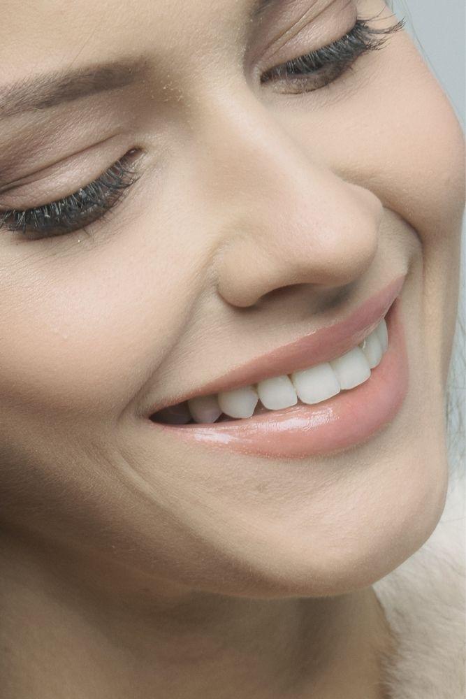 gummy smile beograd centar 4