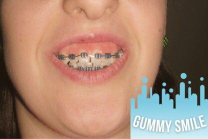 gummy smile beograd centar 2
