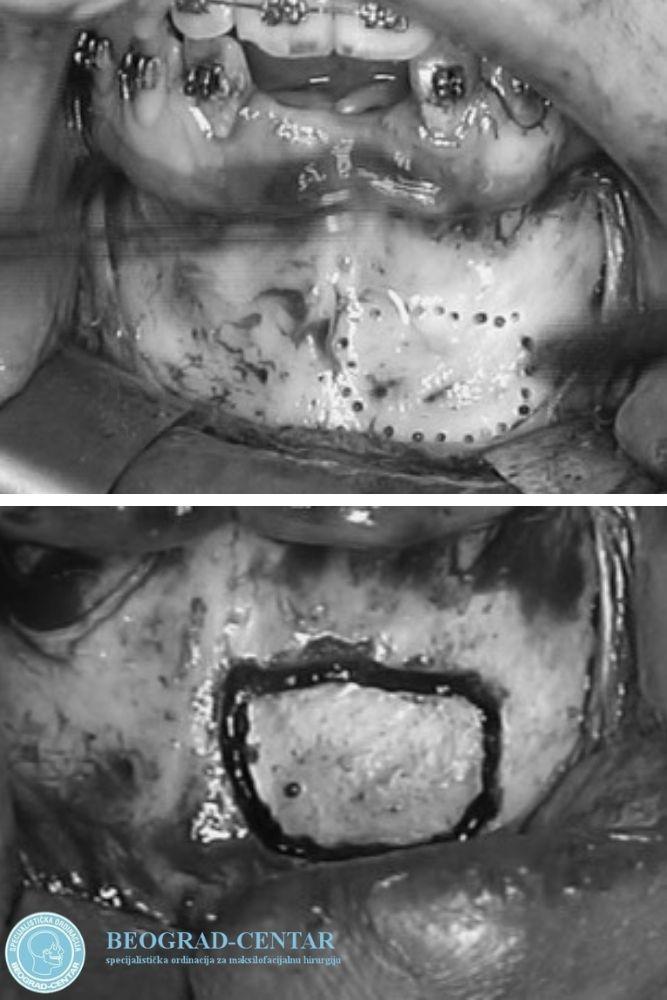 nadogradnja kosti vilice beograd centar 2